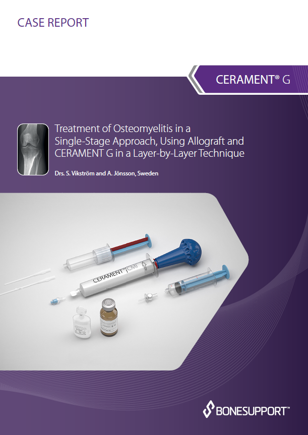 Vikstrom – Treatment of osteomyelitis in a single-stage approach, using allograft and CERAMENT™|G in a layer-by-layer technique