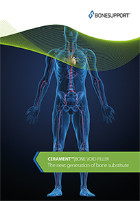 CERAMENT BONE VOID FILLER brochure the next generation of bone substitute