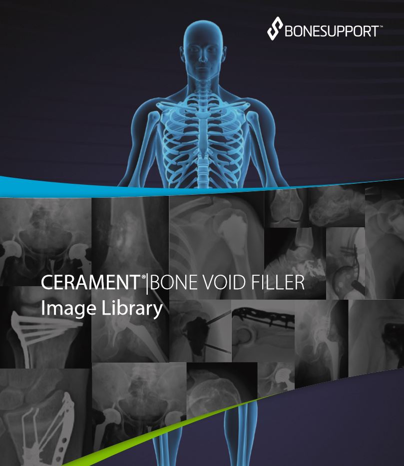 CERAMENT BONE VOID FILLER Image Library
