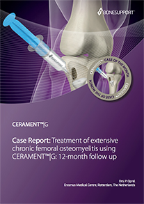 Treatment of extensive chronic femoral osteomyelitis using CERAMENT®|G: 12-month follow up