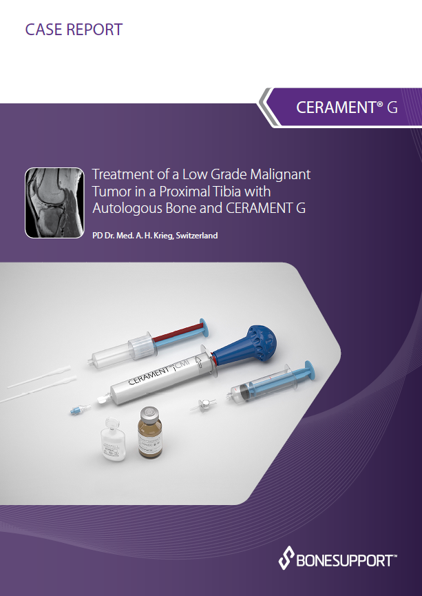 Treatment of a low grade malignant tumor in a proximal tibia with autologous bone and CERAMENT G