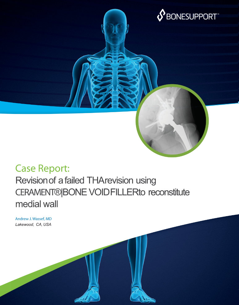 Wassef Revision of a failed THA revision using CERAMENT®|BONE VOID FILLER  to reconstitute medial wall