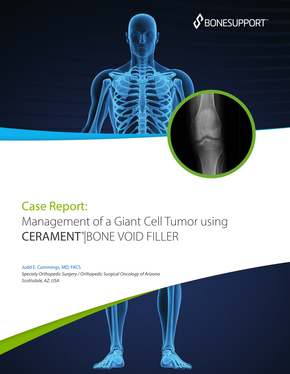 Management of a Giant Cell Tumor using CERAMENT |BONE VOID FILLER