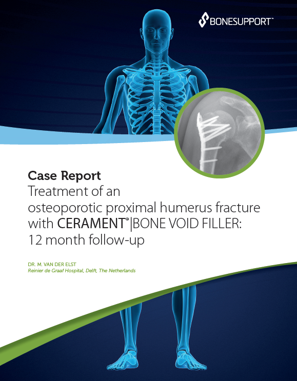 Van der Elst Treatment of an osteoporotic proximal humerus fracture with CERAMENT®   BONE VOID FILLER 12 month follow-up