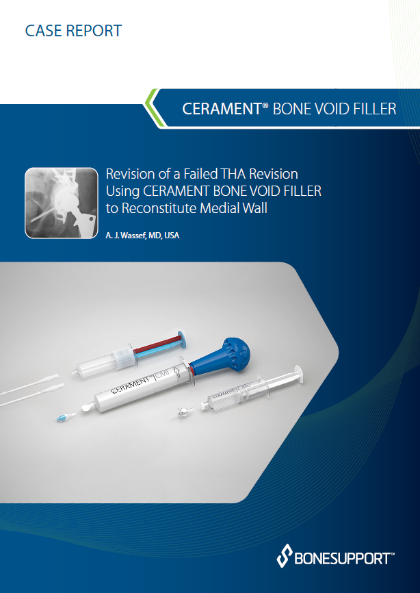 Wassef Revision of a failed THA revision using CERAMENT BONE VOID FILLER  to reconstitute medial wall
