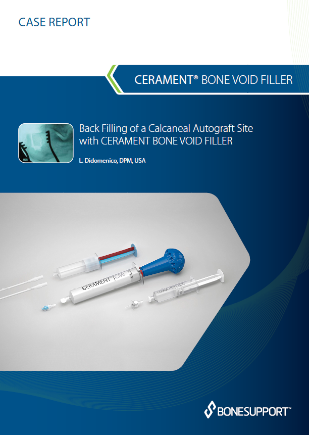 Didomenico Back Filling of a Calcaneal Autograft Site with CERAMENT BONE VOID FILLER
