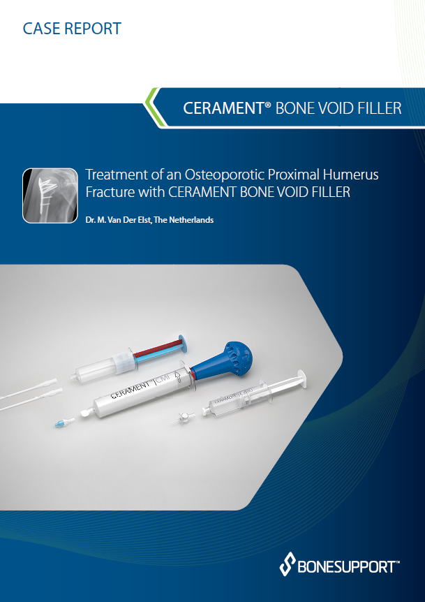 Treatment of an osteoporotic proximal humerus fracture with CERAMENT BONE VOID FILLER 12 month follow-up