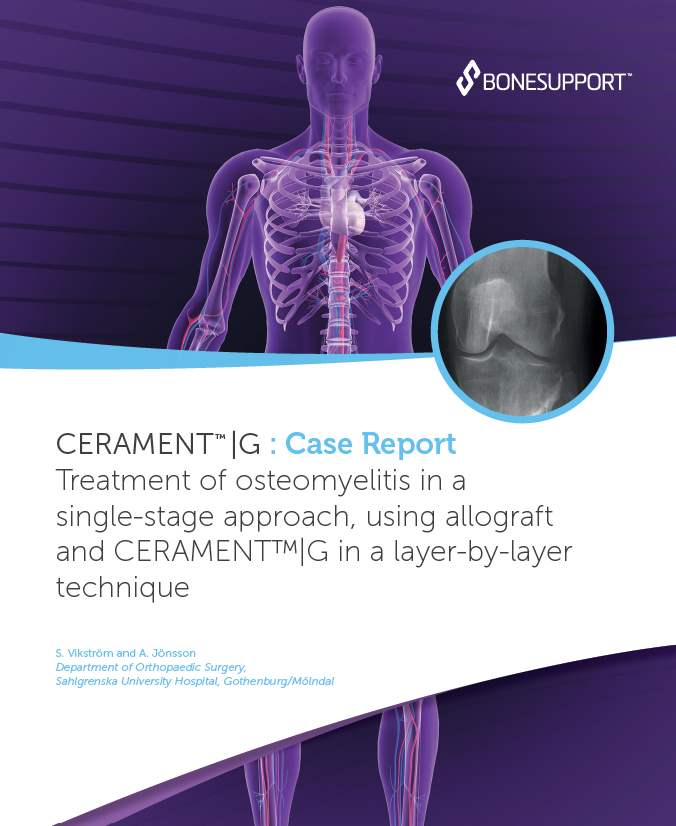 Vikstrom – Treatment of osteomyelitis in a single-stage approach, using allograft and CERAMENT G in a layer-by-layer technique