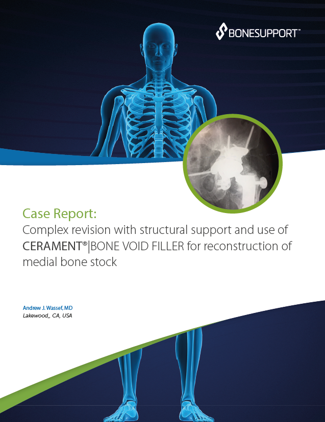 Wassef Complex revision with structural support and use of CERAMENT®|BONE VOID FILLER for reconstruction of medial bone stock