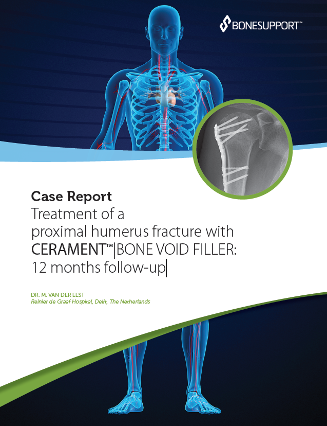 Dr van der Elst Treatment of a proximal humerus fracture with CERAMENT BONE VOID FILLER: 12 months follow-up